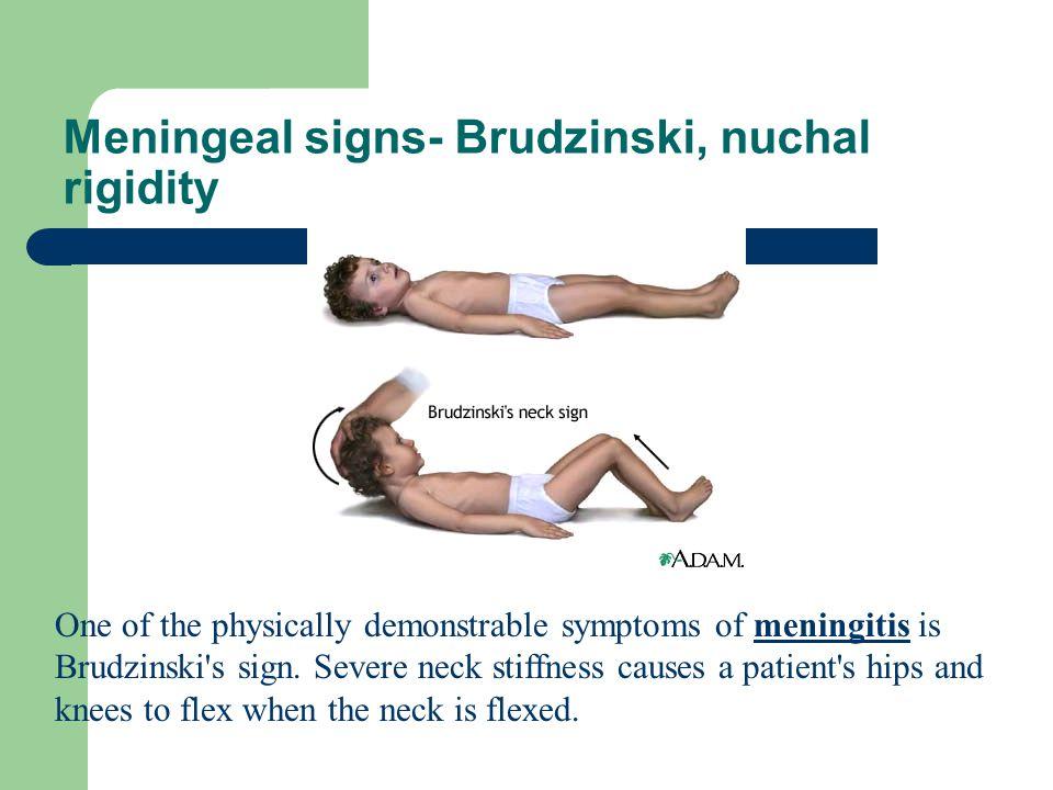 Meningeal signs- Brudzinski, nuchal rigidity One of the physically demonstrable symptoms of meningitis is Brudzinski's sign. Severe neck stiffness cau
