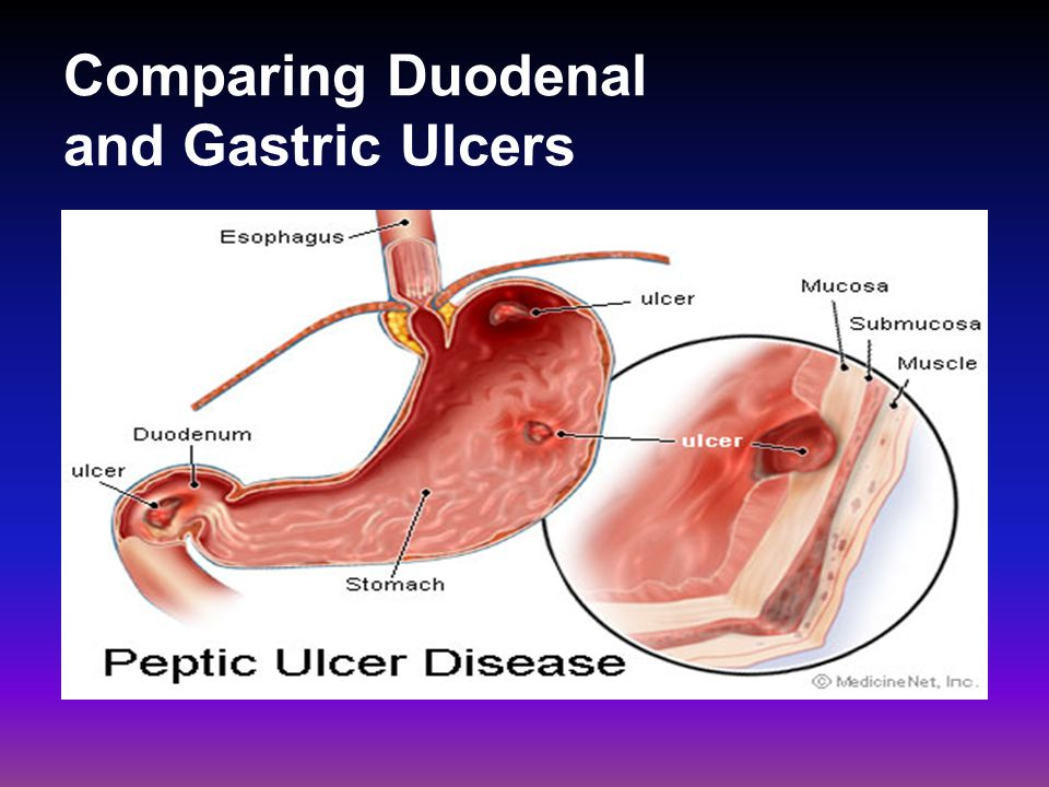 Duodenal Ulcers duodenal sites are 4x as common as gastric sites most common in middle age peak 30-50 years Male to female ratio—4:1 Genetic link: 3x more common in 1 st degree relatives more common in patients with blood group O associated with increased serum pepsinogen H.