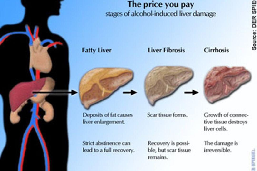 Normal Liver, Fatty Liver, Cirrhosis
