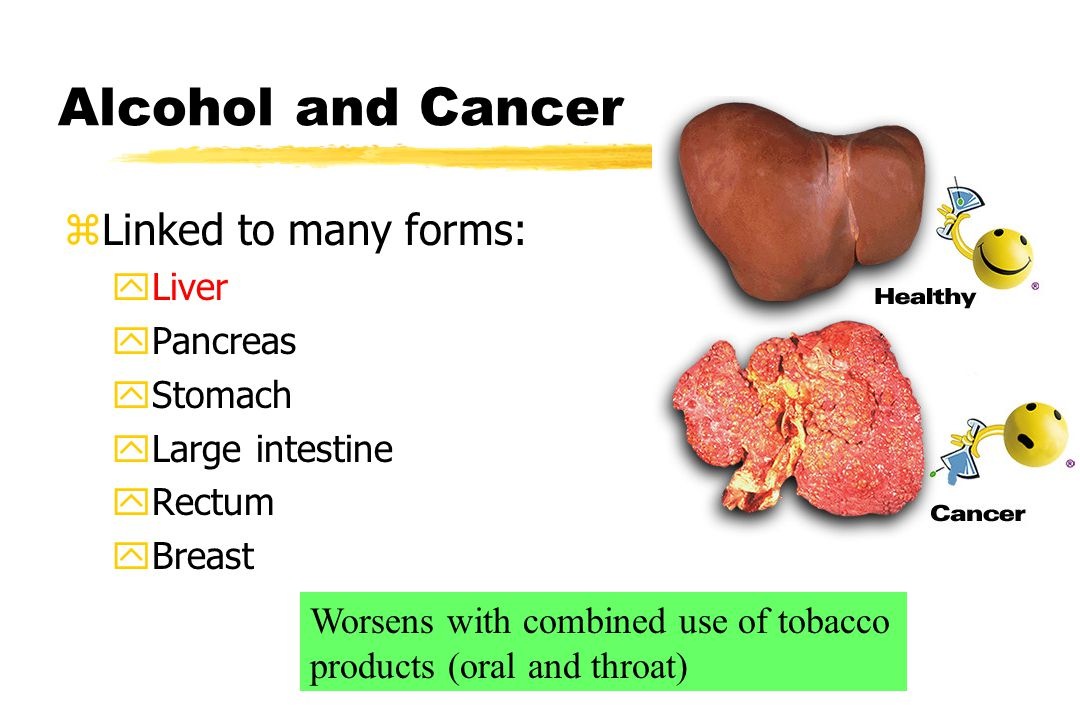 Alcohol and Cancer zLinked to many forms: yLiver yPancreas yStomach yLarge intestine yRectum yBreast Worsens with combined use of tobacco products (oral and throat)