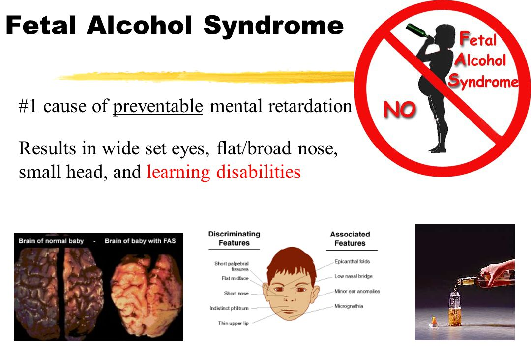 Fetal Alcohol Syndrome #1 cause of preventable mental retardation Results in wide set eyes, flat/broad nose, small head, and learning disabilities