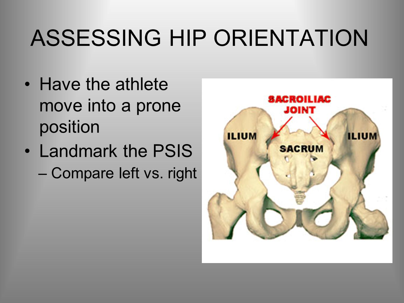 ASSESSING HIP ORIENTATION Have the athlete move into a prone position Landmark the PSIS –Compare left vs.