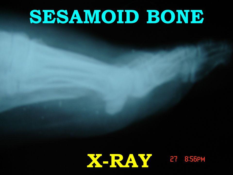 X-RAY SESAMOID BONE