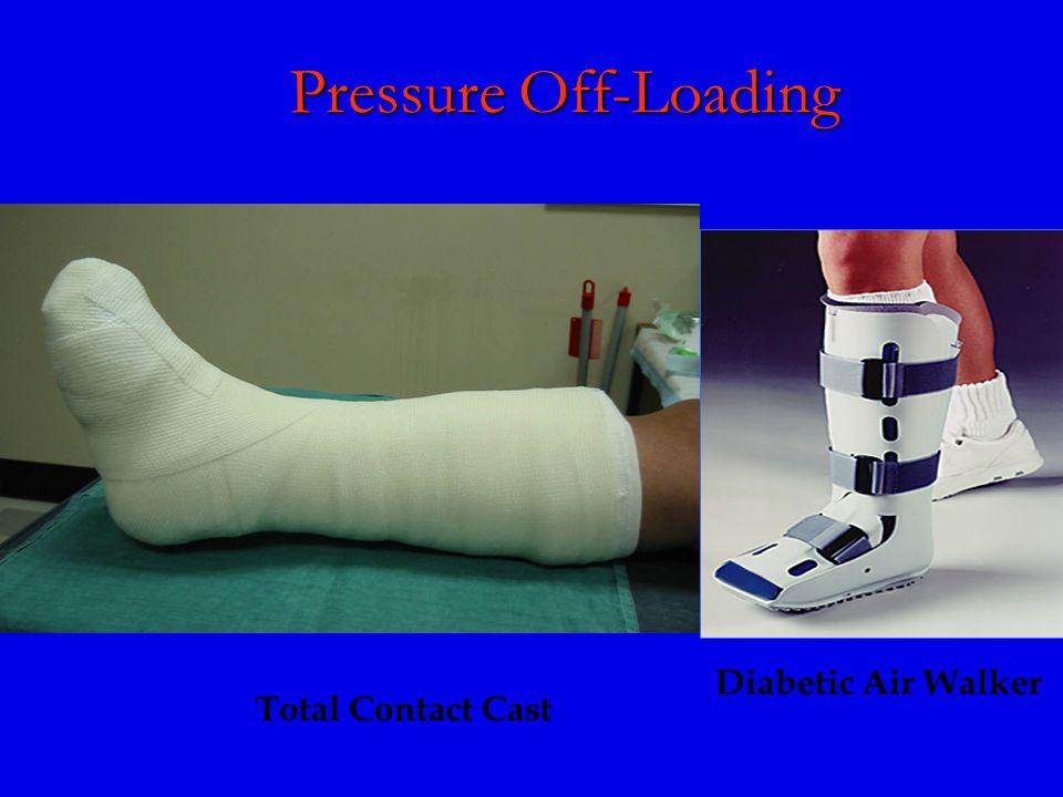 Pressure Off-Loading Total Contact Cast Diabetic Air Walker
