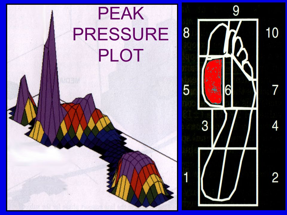 PEAK PRESSURE PLOT
