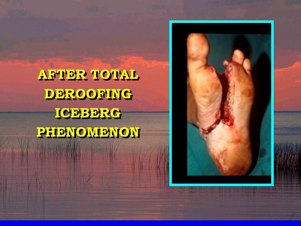 AFTER TOTAL DEROOFING ICEBERG PHENOMENON