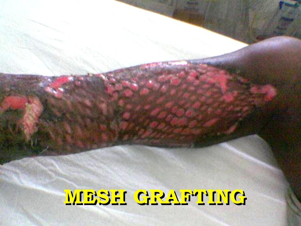 MESH GRAFTING