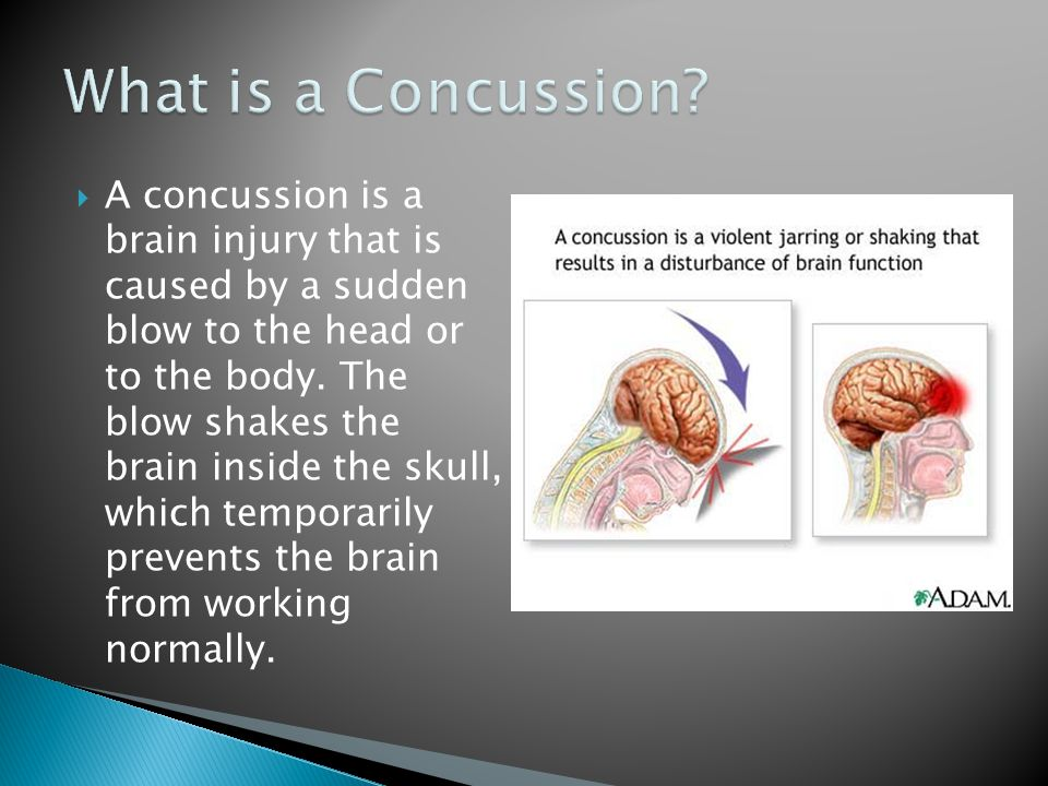  A concussion is a brain injury that is caused by a sudden blow to the head or to the body.