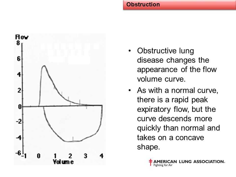 Obstructive lung disease changes the appearance of the flow volume curve. As with a normal curve, there is a rapid peak expiratory flow, but the curve