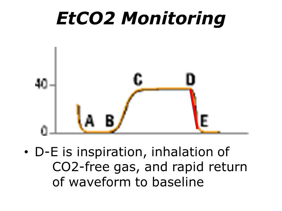 EtCO2 Monitoring D-E is inspiration, inhalation of CO2-free gas, and rapid return of waveform to baseline