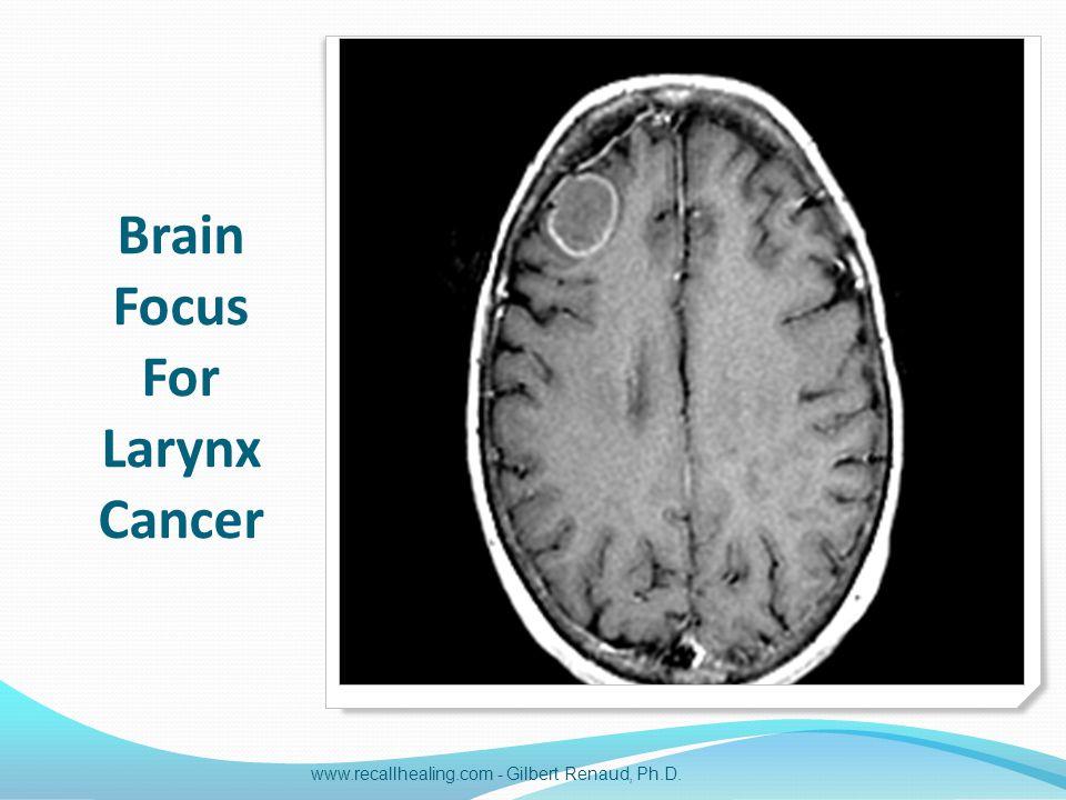 Brain Focus For Larynx Cancer www.recallhealing.com - Gilbert Renaud, Ph.D.