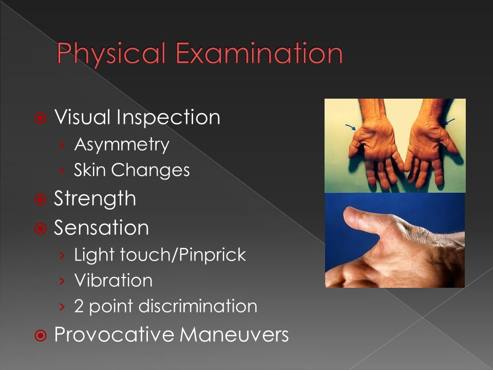  Visual Inspection › Asymmetry › Skin Changes  Strength  Sensation › Light touch/Pinprick › Vibration › 2 point discrimination  Provocative Maneuvers