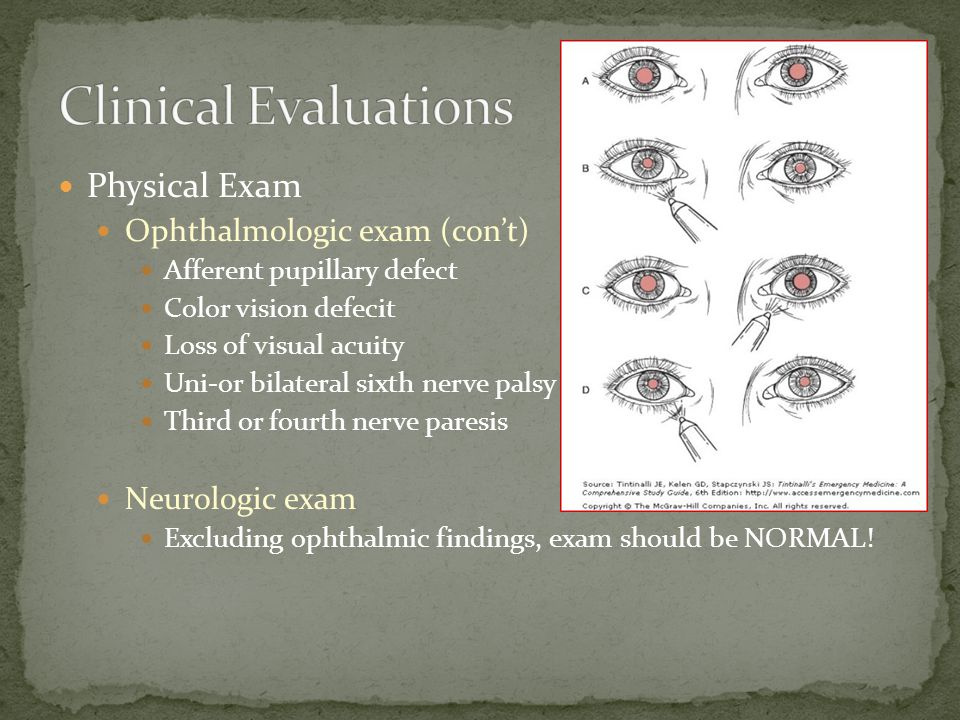 Physical Exam Ophthalmologic exam (con't) Afferent pupillary defect Color vision defecit Loss of visual acuity Uni-or bilateral sixth nerve palsy Third or fourth nerve paresis Neurologic exam Excluding ophthalmic findings, exam should be NORMAL!
