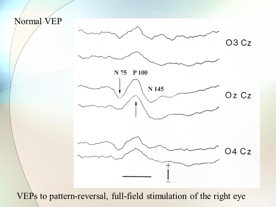 Visual-evoked potentials (VEP) Electrical activity induced in visual cortex by light stimuli Anatomical basis of the VEP: Rods and Cones Bipolar neurons Retina Ganglion cells Optic nerve Optic chiasm Optic tract Lateral geniculate body Optic radiation Occipital lobe, visual cortex Anterior visual pathways Retrochiasmal pathways