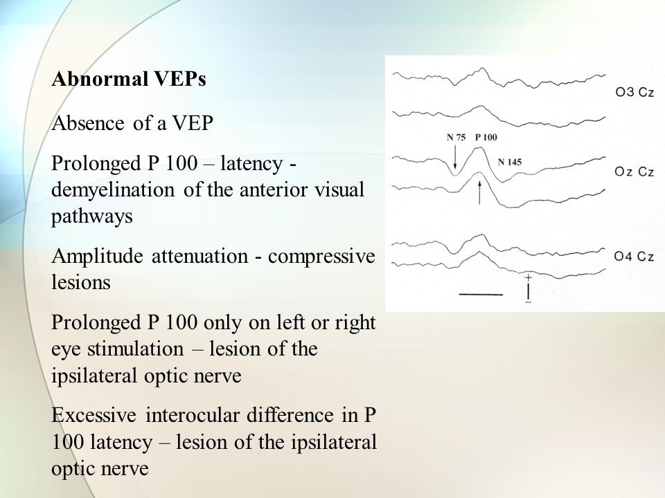 Abnormal VEPs Absence of a VEP Prolonged P 100 – latency - demyelination of the anterior visual pathways Amplitude attenuation - compressive lesions Prolonged P 100 only on left or right eye stimulation – lesion of the ipsilateral optic nerve Excessive interocular difference in P 100 latency – lesion of the ipsilateral optic nerve