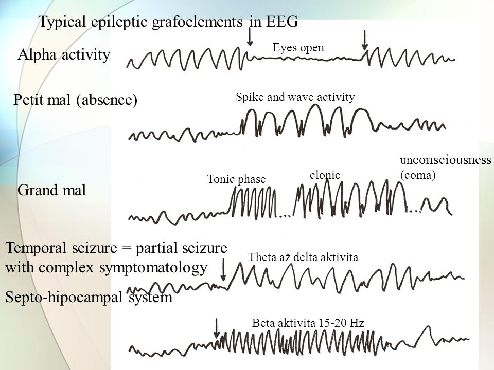 Typical epileptic grafoelements in EEG Petit mal (absence) Grand mal Tonic phase clonic un consciousness (coma) Temporal seizure = partial seizure with complex symptomatology Septo-hipocampal system Alpha activity Eyes open Spike and wave activity Beta aktivita 15-20 Hz Theta až delta aktivita