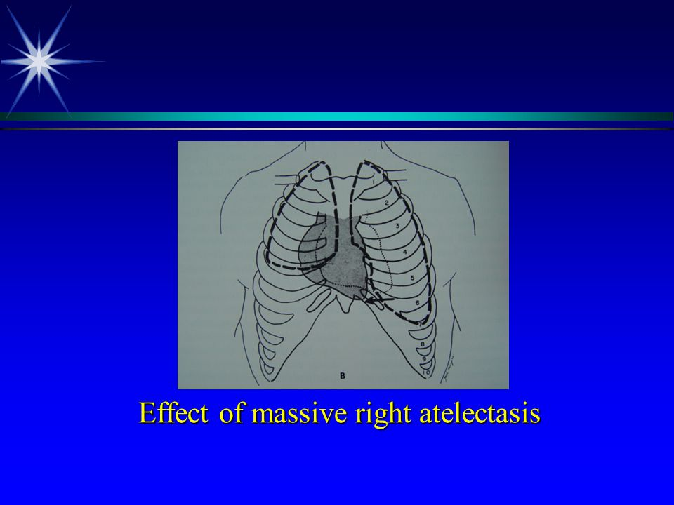 Effect of massive right atelectasis Effect of massive right atelectasis