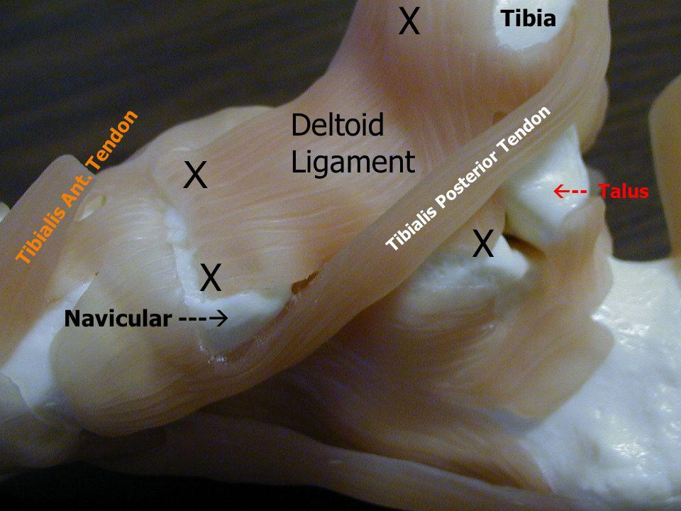 Tibia X X X Navicular ---   -- Talus Tibialis Posterior Tendon Tibialis Ant. Tendon Deltoid Ligament X