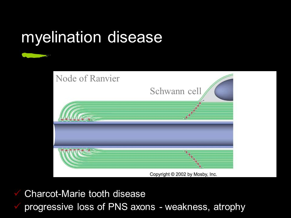 myelination disease Charcot-Marie tooth disease progressive loss of PNS axons - weakness, atrophy Node of Ranvier Schwann cell