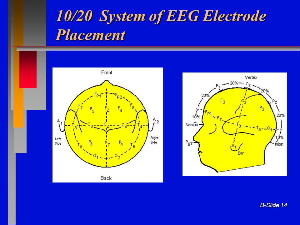 B-Slide 14 10/20 System of EEG Electrode Placement