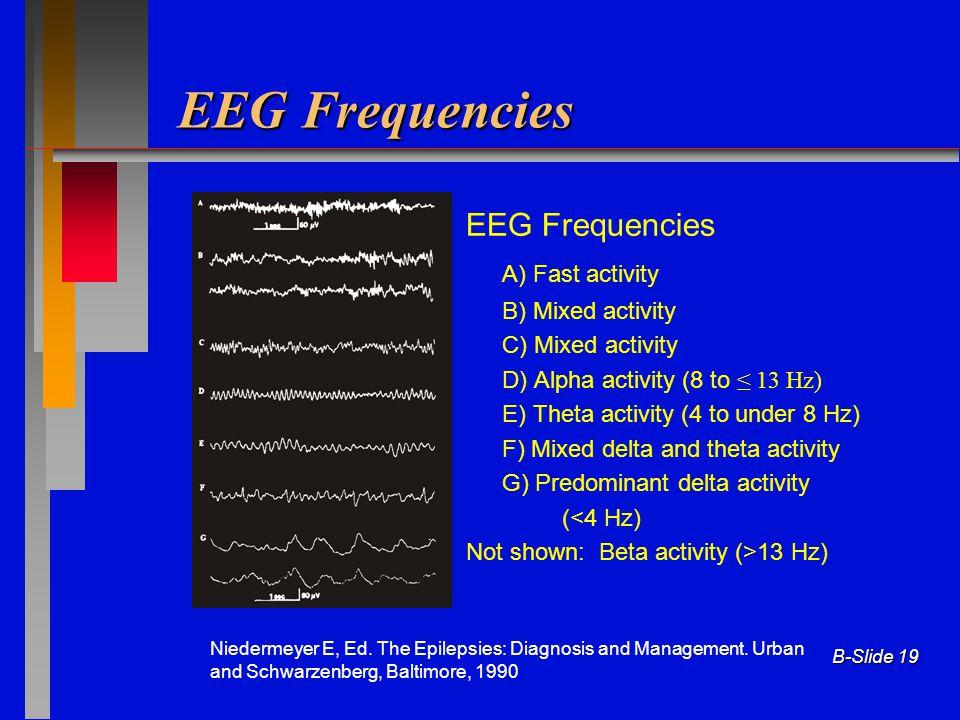 B-Slide 19 EEG Frequencies A) Fast activity B) Mixed activity C) Mixed activity D) Alpha activity (8 to ≤ 13 Hz) E) Theta activity (4 to under 8 Hz) F