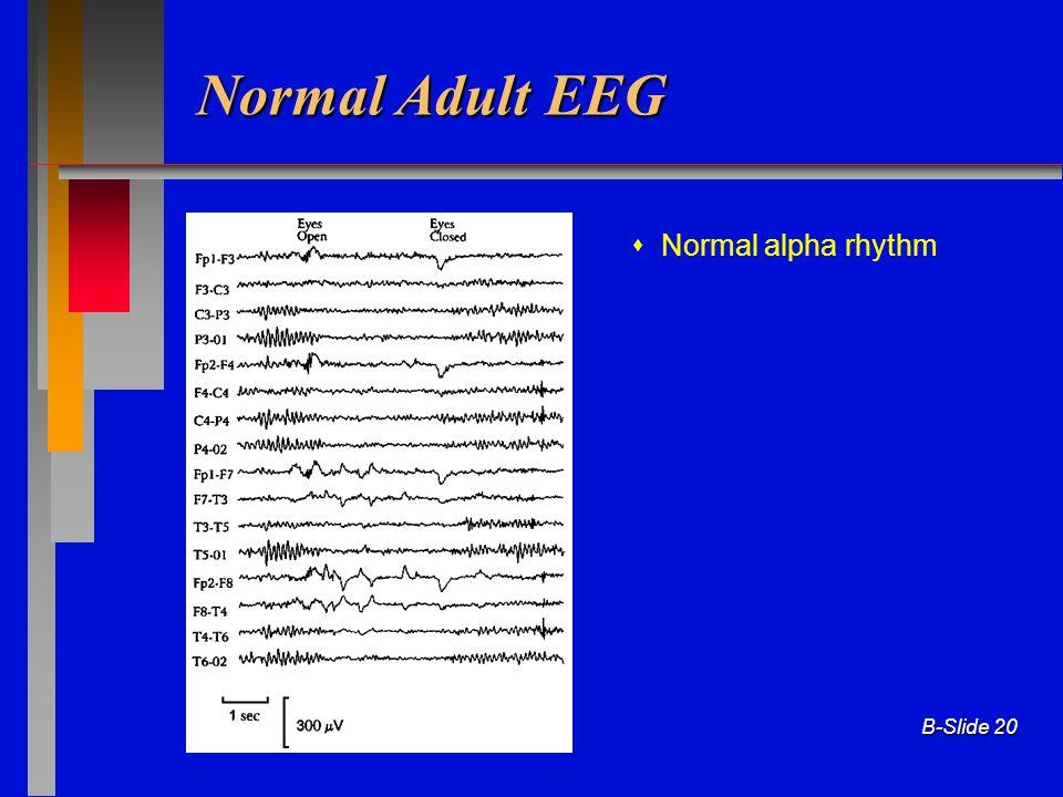 B-Slide 20 Normal Adult EEG  Normal alpha rhythm