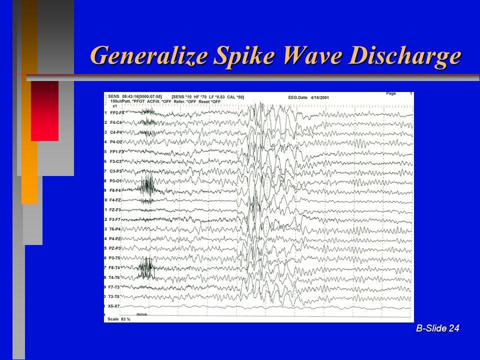 B-Slide 24 Generalize Spike Wave Discharge