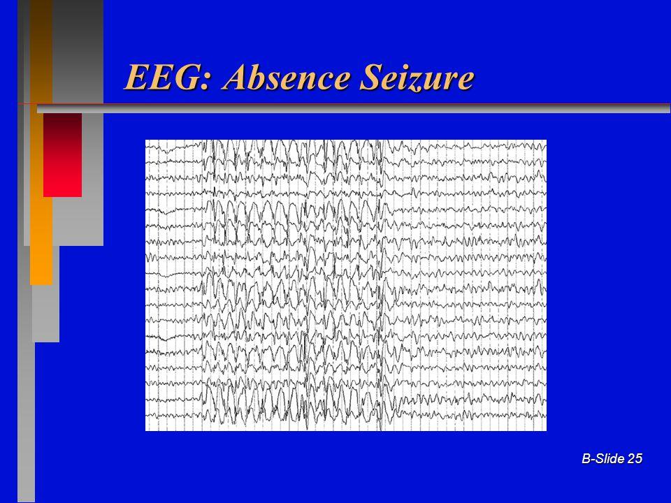 B-Slide 25 EEG: Absence Seizure