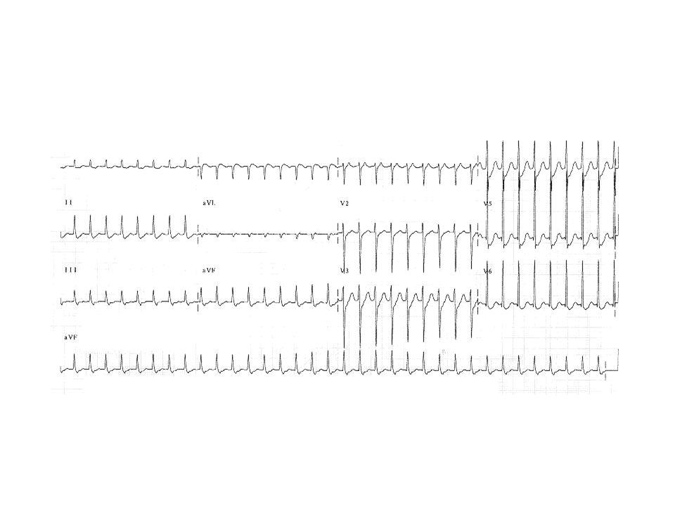 AV re-entry tachycardia