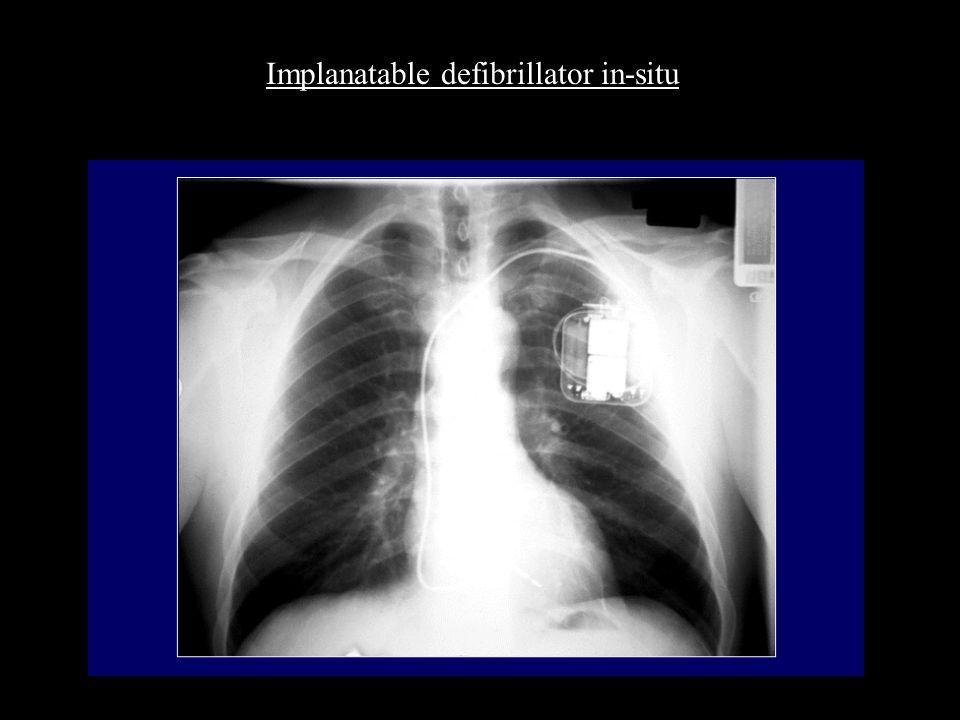 Implanatable defibrillator in-situ