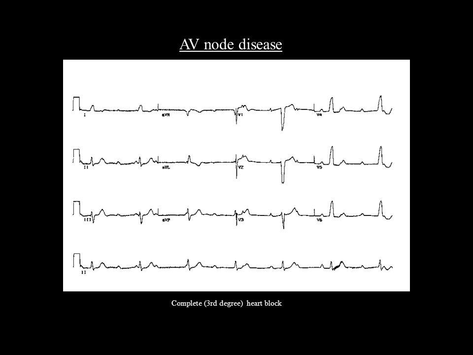 AV node disease Complete (3rd degree) heart block