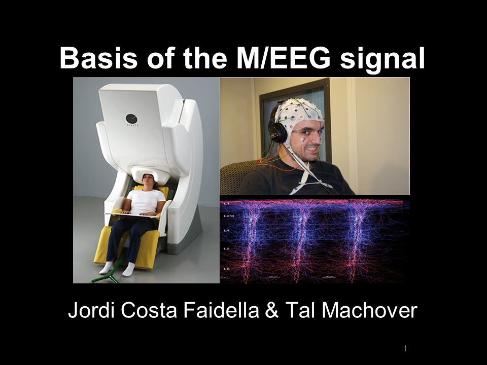 Electroencephalography (EEG) Special thanks to Randal Pinto