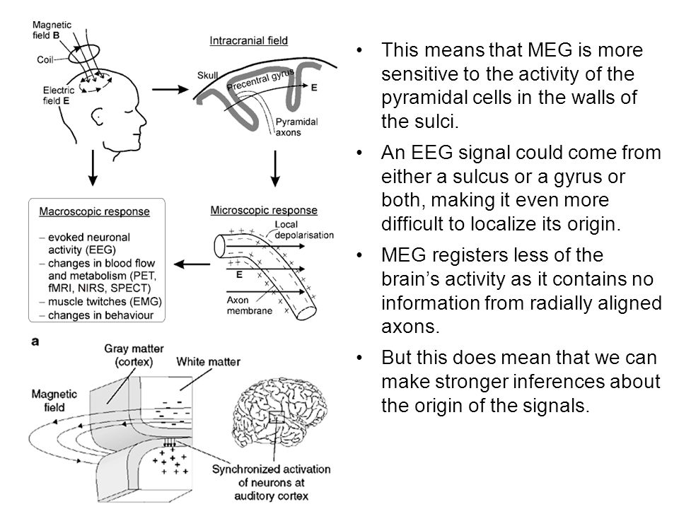 This means that MEG is more sensitive to the activity of the pyramidal cells in the walls of the sulci.
