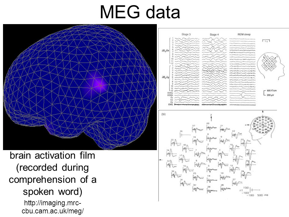 MEG data http://imaging.mrc- cbu.cam.ac.uk/meg/ brain activation film (recorded during comprehension of a spoken word)