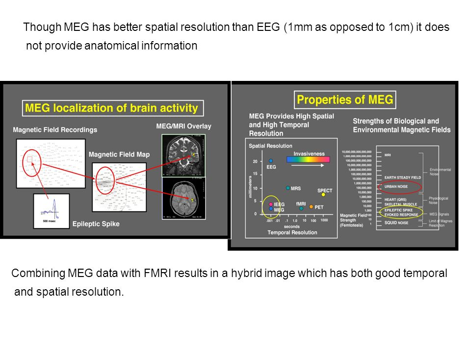 Though MEG has better spatial resolution than EEG (1mm as opposed to 1cm) it does not provide anatomical information Combining MEG data with FMRI results in a hybrid image which has both good temporal and spatial resolution.