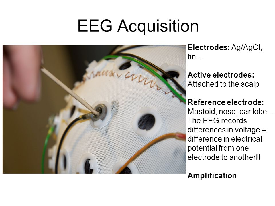 EEG Acquisition Electrodes: Ag/AgCl, tin… Active electrodes: Attached to the scalp Reference electrode: Mastoid, nose, ear lobe...