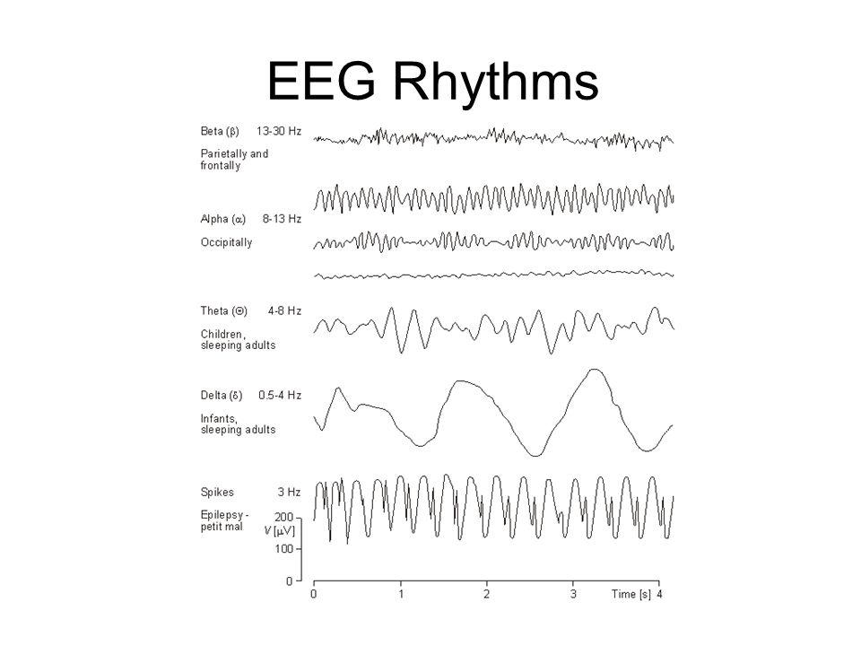 What does the EEG record.Mainly NOISE!.