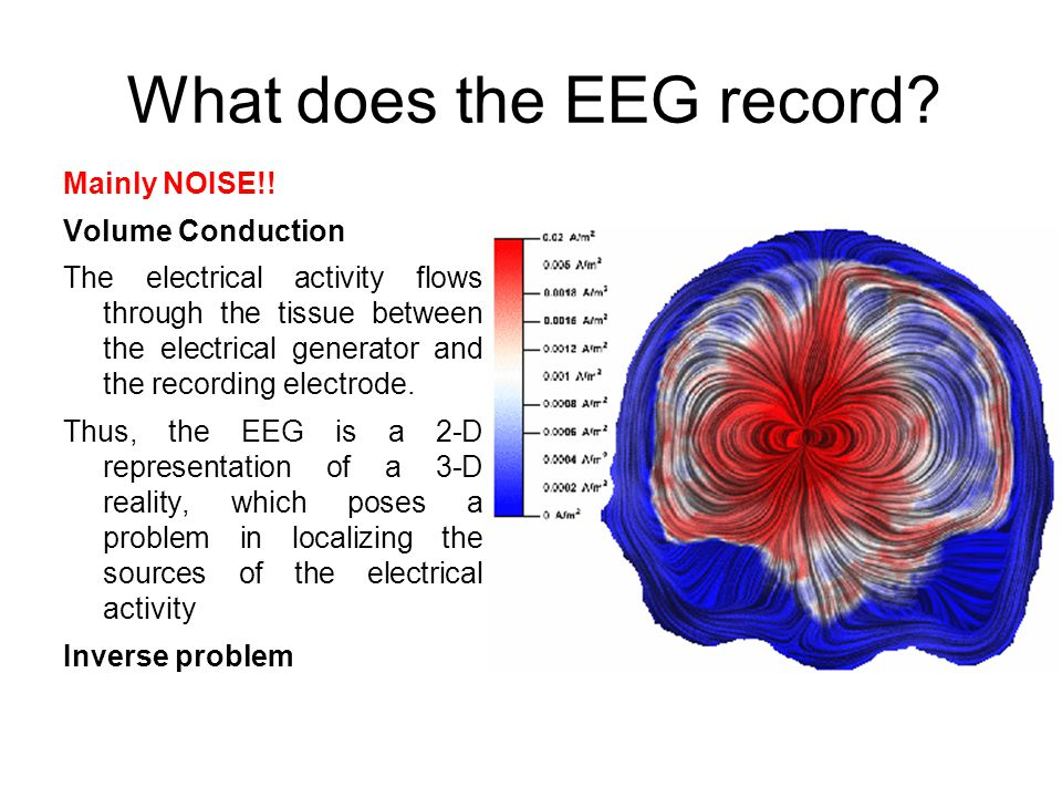 What does the EEG record. Mainly NOISE!.