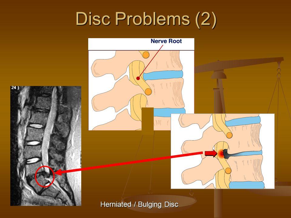 Disc Problems (2) Herniated / Bulging Disc