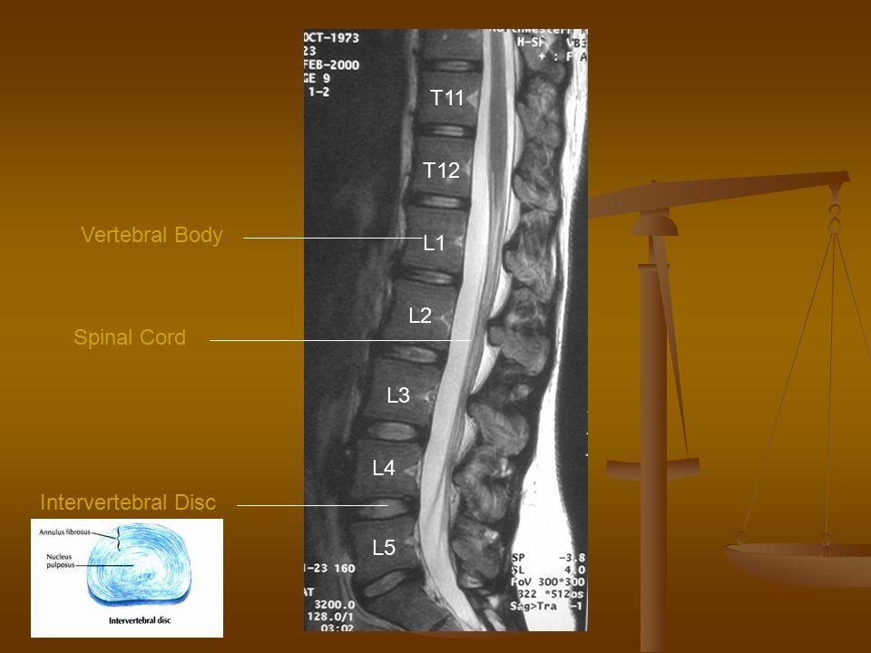 L5 L4 L3 L2 L1 T12 T11 Spinal Cord Intervertebral Disc Vertebral Body