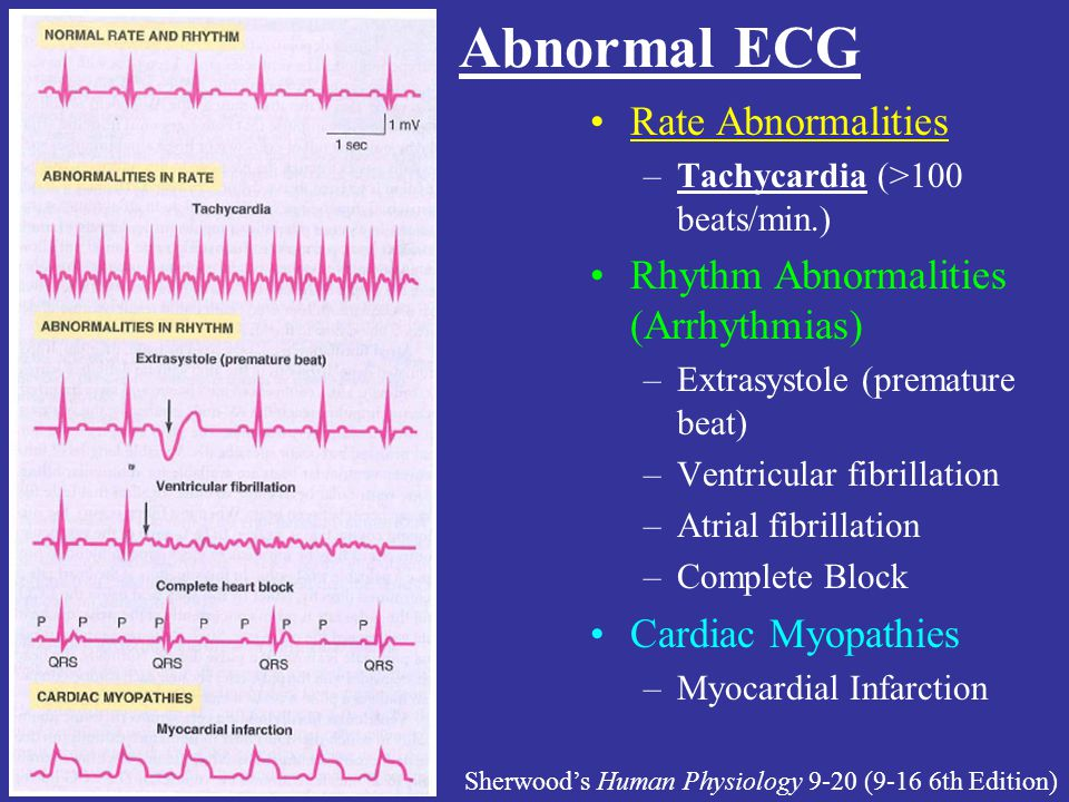 Abnormal ECG Rate Abnormalities –Tachycardia (>100 beats/min.) Rhythm Abnormalities (Arrhythmias) –Extrasystole (premature beat) –Ventricular fibrilla