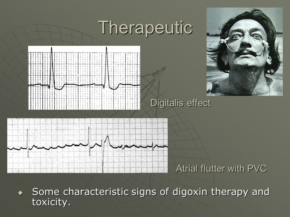 Therapeutic  Some characteristic signs of digoxin therapy and toxicity.