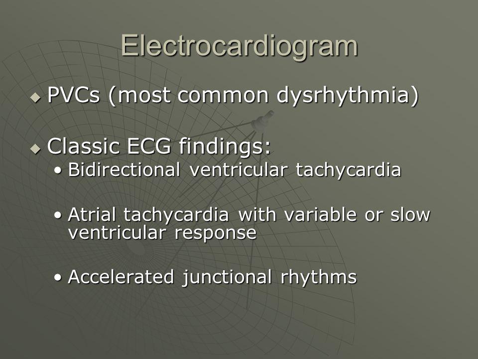 Electrocardiogram  PVCs (most common dysrhythmia)  Classic ECG findings: Bidirectional ventricular tachycardiaBidirectional ventricular tachycardia