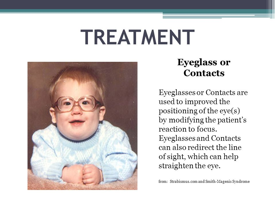 TREATMENT Eyeglass or Contacts Eyeglasses or Contacts are used to improved the positioning of the eye(s) by modifying the patient's reaction to focus.