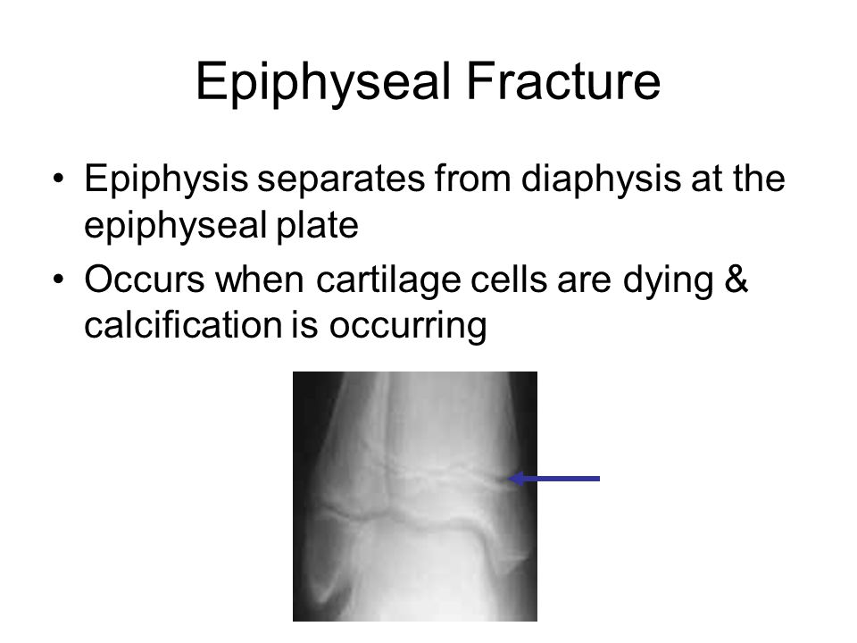 Epiphyseal Fracture Epiphysis separates from diaphysis at the epiphyseal plate Occurs when cartilage cells are dying & calcification is occurring