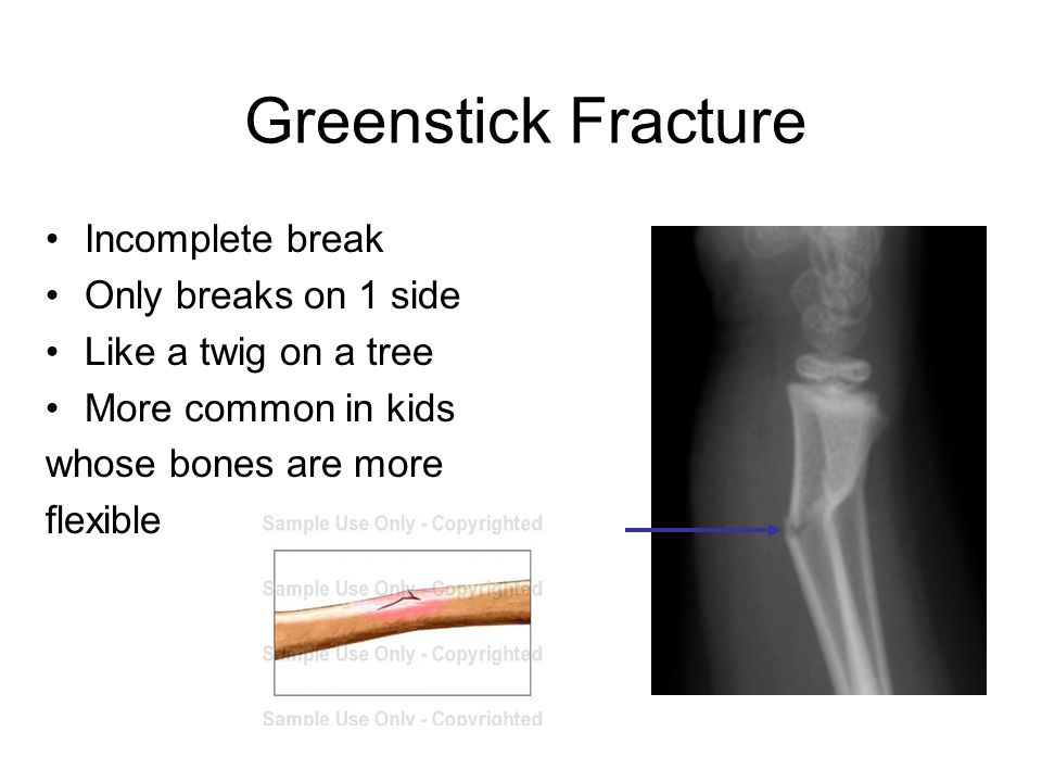 Greenstick Fracture Incomplete break Only breaks on 1 side Like a twig on a tree More common in kids whose bones are more flexible