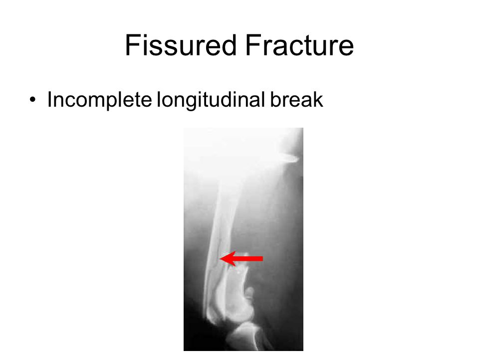 Fissured Fracture Incomplete longitudinal break