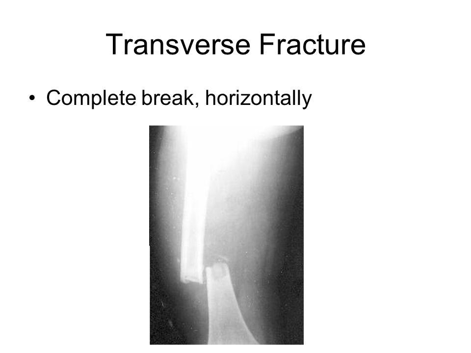 Transverse Fracture Complete break, horizontally
