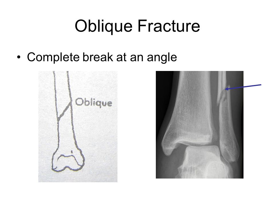 Oblique Fracture Complete break at an angle