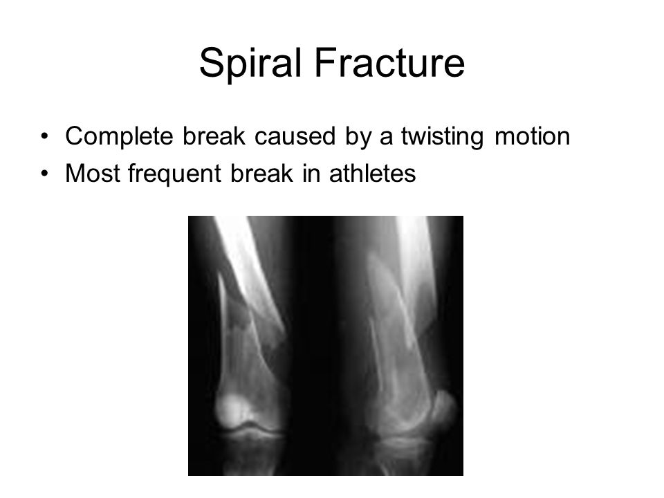 Spiral Fracture Complete break caused by a twisting motion Most frequent break in athletes